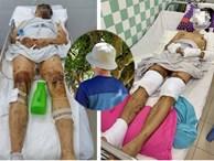 Việt kiều Canada sau 7 tháng bị cắt gân chân và tạt axit giờ ra sao?