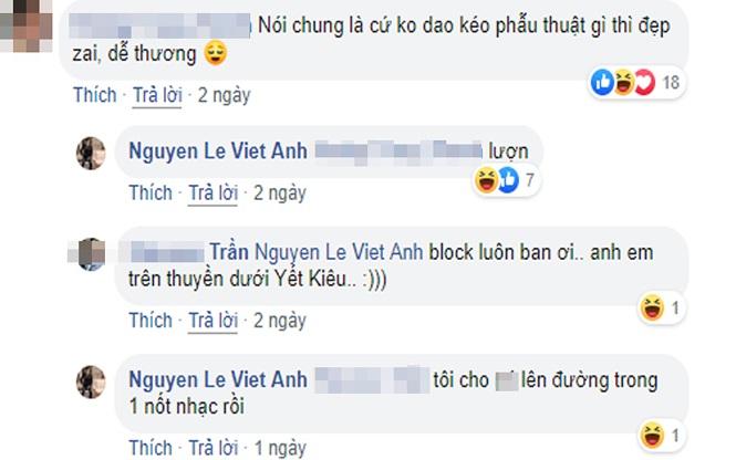 Bị chê diện mạo sau thẩm mỹ, Việt Anh đáp trả gay gắt-2