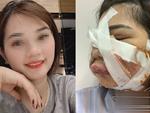 Muốn tiêm mỡ tự thân mà không bị rạch mặt để nặn mủ, chuyên gia khuyến cáo 5 điều quan trọng-5
