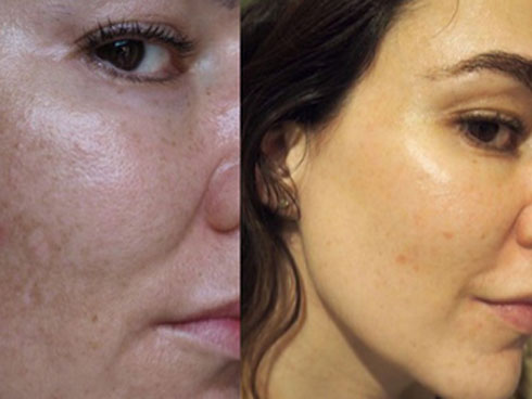Cải thiện bề mặt da và làm mờ nám, đây chính là thành phần chống lão hóa chân ái cho các nàng tuổi 30
