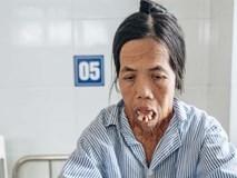 Phép màu đến với người phụ nữ gần 50 năm không ngậm được miệng