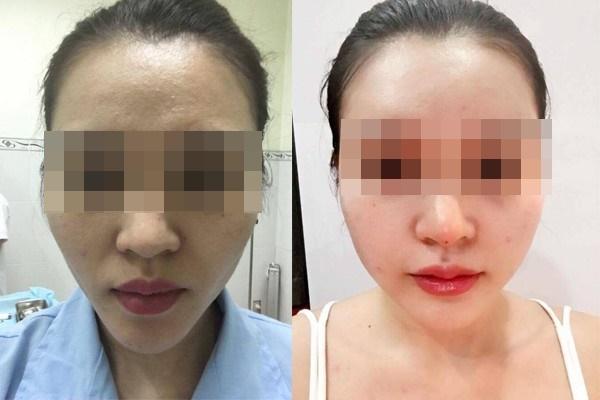 Muốn tiêm mỡ tự thân mà không bị rạch mặt để nặn mủ, chuyên gia khuyến cáo 5 điều quan trọng-3