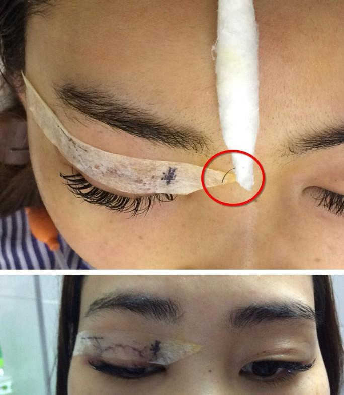 Kinh hãi khi tận mắt thấy hành trình mò kim trong mắt cho cô gái sau trải nghiệm nhấn mí mắt tại spa-2