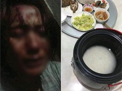 Nấu cơm quên cắm điện, vợ trẻ bị chồng thẳng tay đánh tới chảy máu trán, nhưng dân mạng lại có phản ứng bất ngờ?