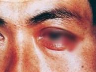 Chàng trai đi khám vì đau mắt nhưng bác sĩ bắt kiểm tra 'phần dưới', lý do gây bất ngờ