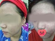 Dùng rượu thuốc bán tràn lan trên mạng để trị mụn, tái tạo da nhiều chị em rước họa 'nát mặt'