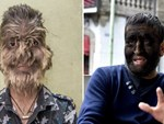 Cô bé người sói với khuôn mặt nhiều lông lá nhất thế giới sau hơn 10 năm xuất hiện trở lại với vẻ ngoài cùng cuộc sống gây kinh ngạc-8
