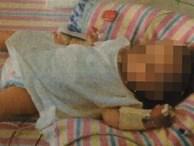 Cha mẹ cho con ăn chay, bé gái 19 tháng tuổi bị suy dinh dưỡng, co giật và cân nặng chưa được 5kg