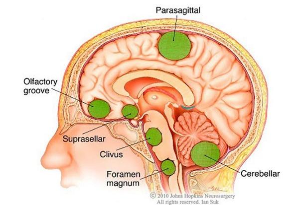 Những dấu hiệu u não hay gặp, điều thứ 3 nhiều người mắc mà không biết-1