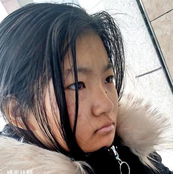 Bé gái 14 tuổi buộc phải dùng thuốc tránh thai 3 lần/ngày, lý do thực sự khiến ai cũng thương xót-2