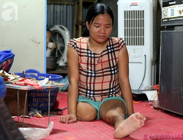 Chuyện rớt nước mắt sau túp lều dựng tạm ven đường của người mẹ cụt chân, một mình nuôi con trai khờ ở Hà Nội-1