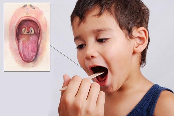 Những điều cần biết về bạch hầu - căn bệnh có thể gây tử vong trong 6 ngày-2