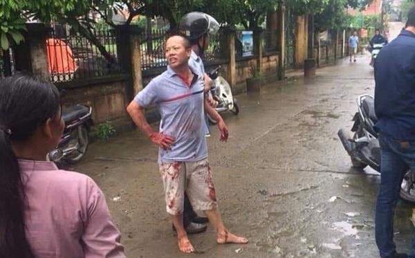 Vụ chém gia đình em ruột ở Hà Nội: Gây án xong, Đông đứng ở hiện trường-1