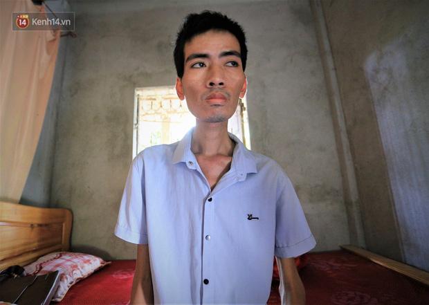 Xót xa chàng trai gầy trơ xương vì mắc bệnh hiểm nghèo chỉ 2 tháng sau đám cưới: Em phải sống, để hiến thận cứu con mình-2