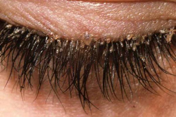 Bài học cho chị em thích trang điểm: Vô số bọ ve làm tổ ở lông mi người phụ nữ 32 tuổi vì không tẩy trang cuối ngày-1