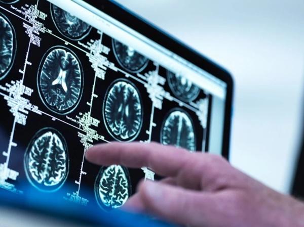 10 dấu hiệu ung thư sớm nhiều người thường chủ quan-1