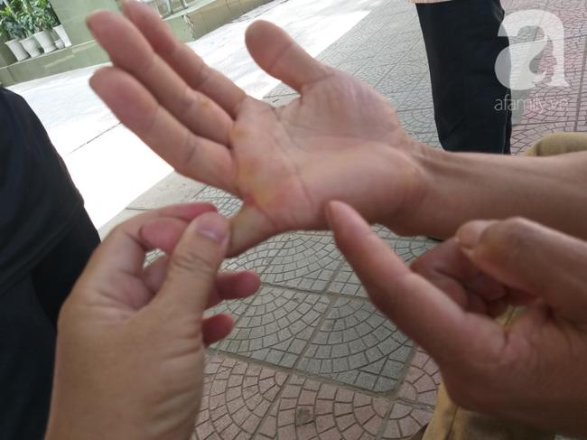 Bố của bé trai 10 tuổi bị người thân chém đứt lìa bàn tay ở Bắc Giang: Giờ tôi chưa dám lại nhìn con-3