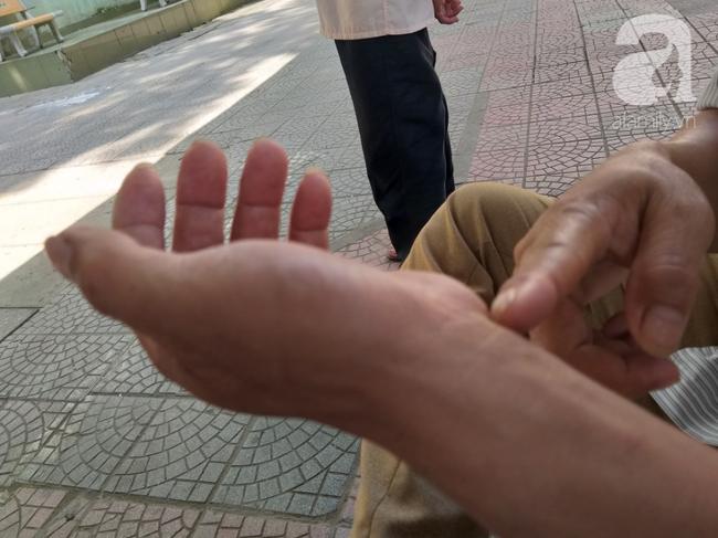 Bố của bé trai 10 tuổi bị người thân chém đứt lìa bàn tay ở Bắc Giang: Giờ tôi chưa dám lại nhìn con-4
