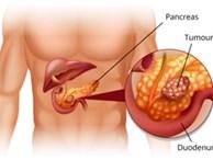 Dấu hiệu mắc ung thư tụy 90% người có triệu chứng này mà không hề biết