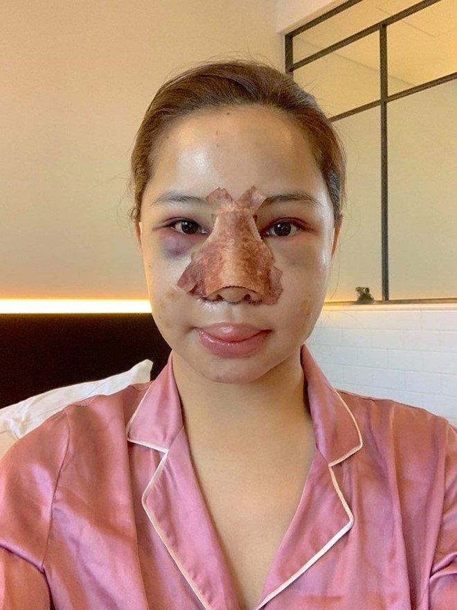 Lưu Đê Ly công khai phẫu thuật thẩm mỹ toàn bộ gương mặt-1