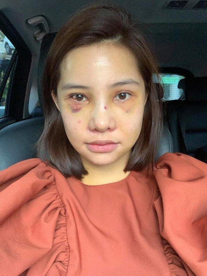 Lưu Đê Ly công khai phẫu thuật thẩm mỹ toàn bộ gương mặt-2
