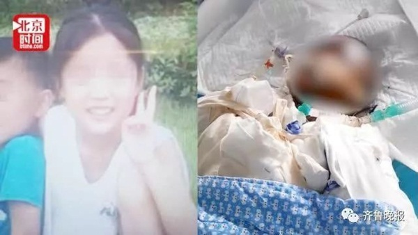 Bắt chước thánh nữ văn phòng Tiểu Dã làm bỏng ngô tại nhà, bé gái 14 tuổi gặp tai nạn bỏng nặng rồi tử vong sau hơn 1 tuần-1