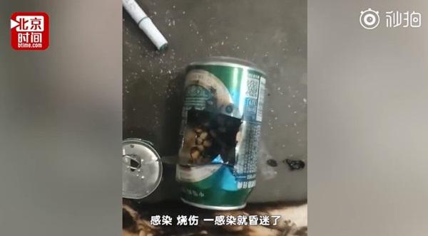 Bắt chước thánh nữ văn phòng Tiểu Dã làm bỏng ngô tại nhà, bé gái 14 tuổi gặp tai nạn bỏng nặng rồi tử vong sau hơn 1 tuần-3