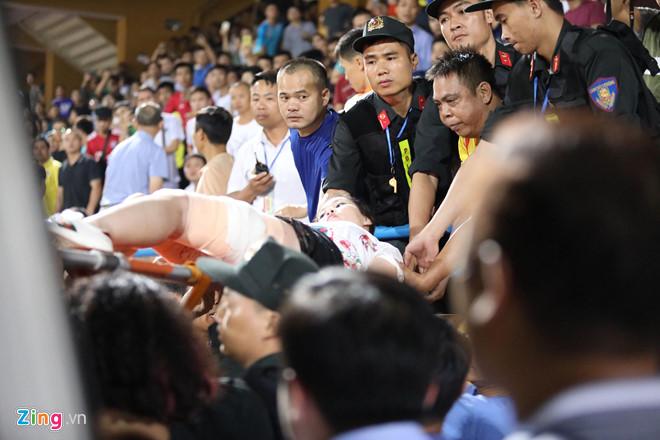 CĐV nữ bị bỏng nặng vào tận xương vì trúng pháo sáng-1