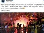 Cầu thủ Hà Nội FC đến bệnh viện thăm CĐV nữ bị bỏng nặng vì trúng pháo-5