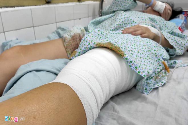 Nữ cổ động viên kể khoảnh khắc bị thương do pháo sáng ở Hàng Đẫy-1