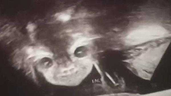 Đi siêu âm thai nhi 24 tuần tuổi, bà mẹ hết hồn khi thấy hình ảnh bé con như đang nhìn chằm chằm mình-1