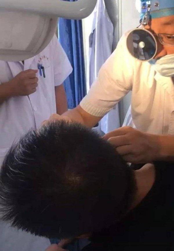Nhét tỏi vào lỗ tai để trị đau tai gây mất ngủ, người đàn ông phải nhận kết đắng-2