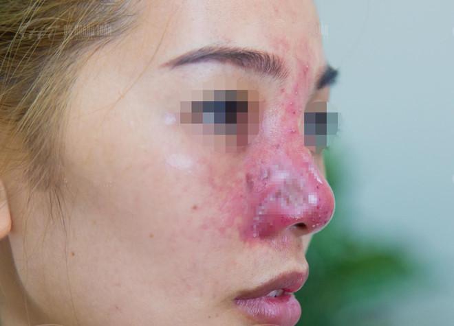 Cô gái suýt mất mũi vì tiêm filler giá rẻ ở spa-1