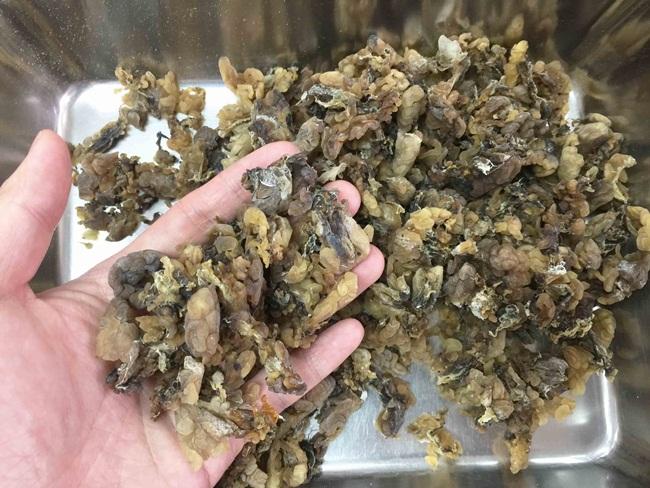 Mỏ vàng trong bụng ếch không ai đoái hoài, giá 1,5 triệu chưa đến 1 lạng-2