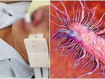 Bệnh Whitmore có thật sự là vi khuẩn 'ăn thịt người': Chuyên gia lý giải sự thật