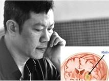 Người hâm mộ sốc nặng khi nhạc sĩ Quốc Bảo bị u não - Căn bệnh nguy hiểm nhưng các dấu hiệu thường bị bỏ qua
