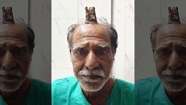 Cắt bỏ sừng ác quỷ dài gần 10 cm trên đầu người đàn ông Ấn Độ-1