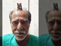 Cắt bỏ 'sừng ác quỷ' dài gần 10 cm trên đầu người đàn ông Ấn Độ