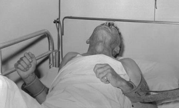 Kém hiểu biết, ông bố trẻ mắc căn bệnh khiến bác sĩ bó tay-1