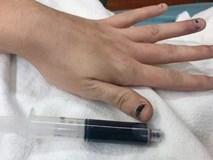 Một người phụ nữ có máu bỗng biến thành màu xanh sau khi dùng kem gây tê để chữa đau răng
