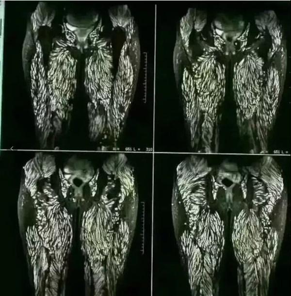 Người phụ nữ bị sán làm tổ kín cả hai chân và phần nhạy cảm chỉ vì thích ăn gỏi-1
