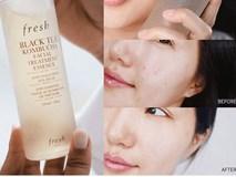 Không khí đang ô nhiễm trầm trọng, chị em cần lưu ý chăm sóc da theo 4 bước này để luôn xinh đẹp