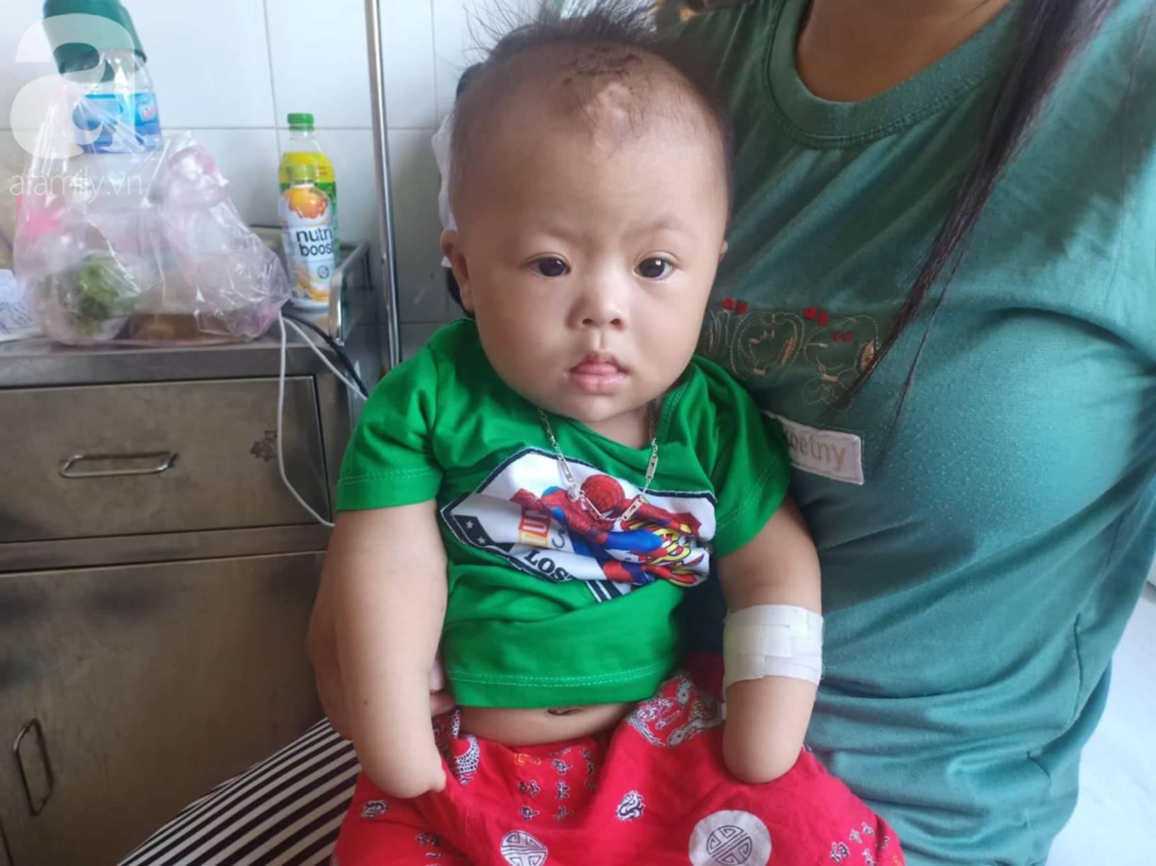 Tâm sự đau đớn của người mẹ khi sinh con trai không có 2 tay: Tôi đã sốc khi lần đầu nhìn thấy hình hài con mình-3