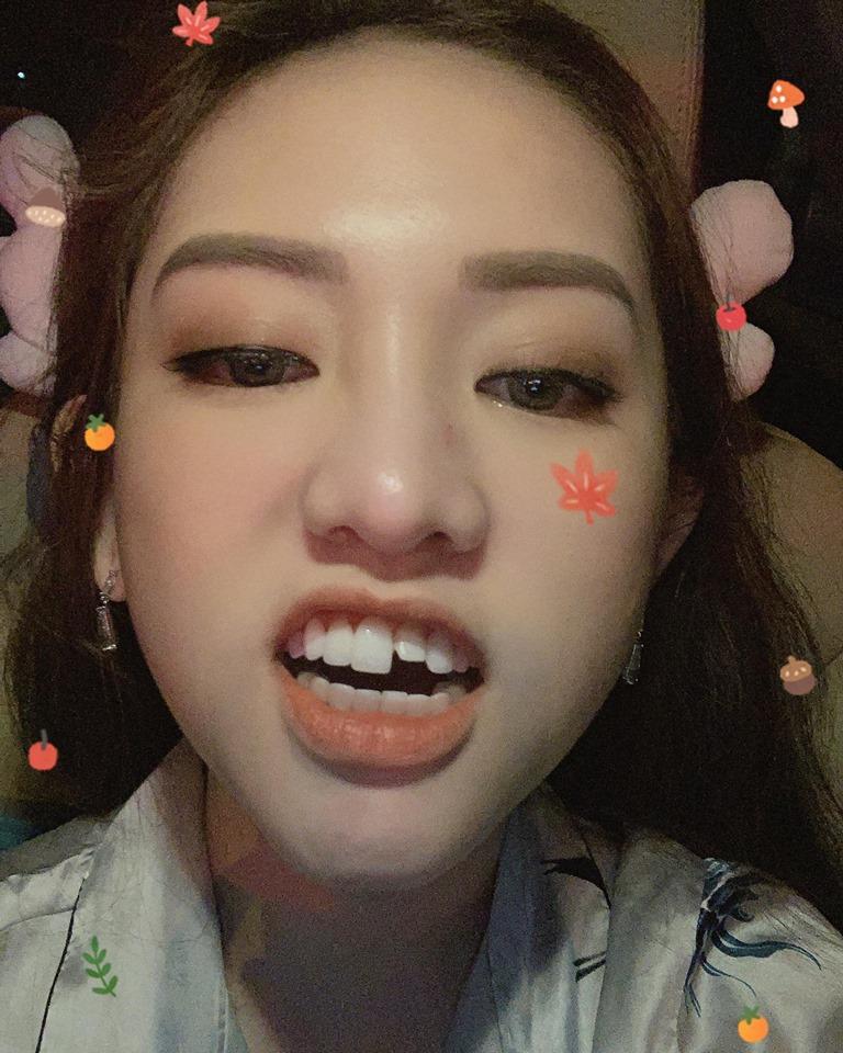 Cười khỏi ngậm miệng xem clip Thúy Vi livestream bán hàng với chiếc răng sún sau cú ngã thế kỷ-1