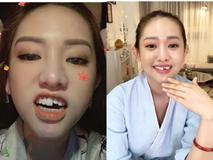 Cười khỏi ngậm miệng xem clip Thúy Vi livestream bán hàng với chiếc 'răng sún' sau cú ngã thế kỷ