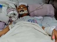 Con trai suýt chết vì một chiếc răng đau, mẹ đau lòng cảnh báo: 'Hãy dạy trẻ cách đánh răng'