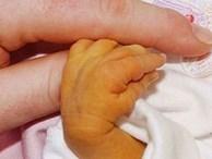 Bé 7 ngày tuổi nguy kịch, phải thay máu vì bố mẹ chủ quan