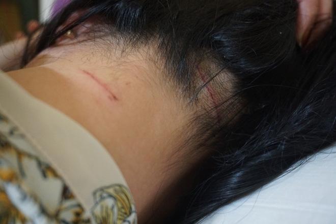 Người phụ nữ đau đớn kể lại sự việc bị chồng cũ đánh đập dã man giữa đường-2