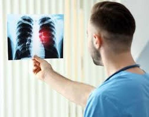 4 biểu hiện khi ngủ cho thấy phổi của bạn đã bị tổn thương-1