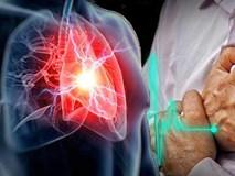 25% dân số Việt Nam đang mắc bệnh tim mạch: Để phòng bệnh bạn hãy thực hiện ngay 5 thay đổi nhỏ này